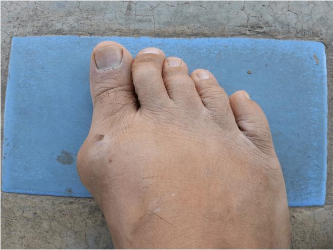 подагра на ноге